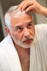 AzonHairLossEssentials rr Amazon Hair Loss Essentials