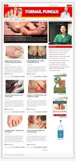 ToenailFungusBlog plr Toenail Fungus Niche Blog